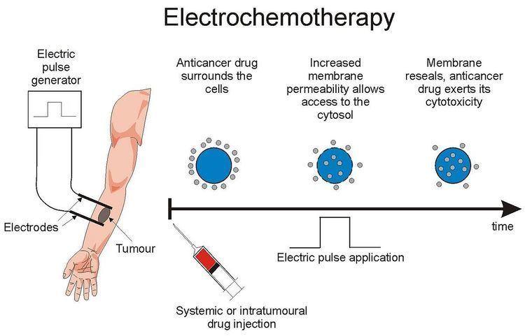 Electrochemotherapy