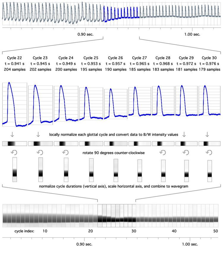 Electroglottographic wavegram
