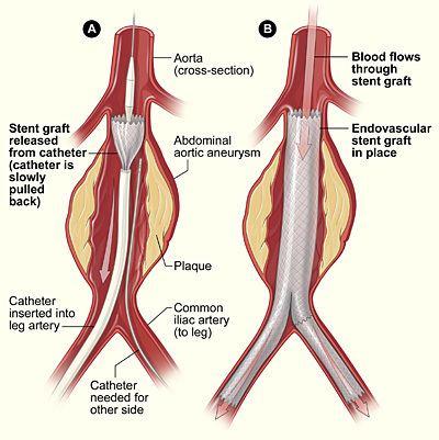 Endovascular aneurysm repair