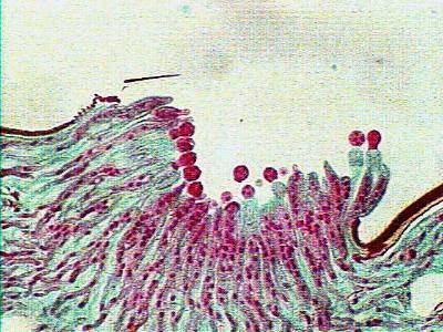 Entomophthora botitbotanywiscedutomsfungiimagesentclosejpg