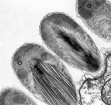 Epixenosomes httpsuploadwikimediaorgwikipediacommonsthu