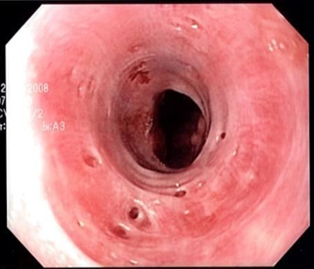 Esophageal intramural pseudodiverticulosis