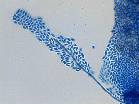 Exophiala dermatitidis Fun With Microbiology What39s Buggin39 You Exophiala dermatitidis