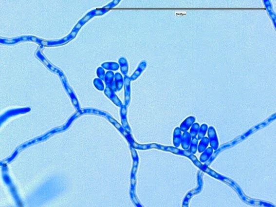 Exophiala jeanselmei Fun With Microbiology What39s Buggin39 You Exophiala jeanselmei