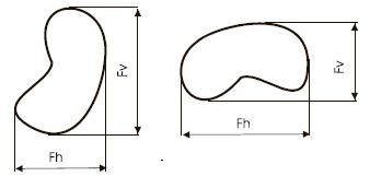 Feret diameter