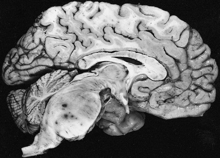 Fibrillary astrocytoma