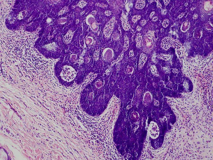 Folliculosebaceous cystic hamartoma
