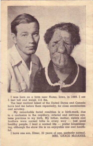 Grace McDaniels Grace McDaniels and son Elmer pitch card Medical