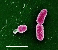 Haemophilus influenzae biogroup aegyptius httpsoquizletcomiSz1u5dzxK9q2pQ1n6llgmjpg