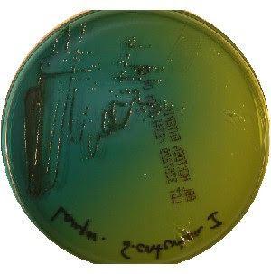 Hektoen enteric agar Biochemical Tests Hektoen Enteric Agar