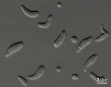 Hematodinium Parasite of the Day Hematodinium sp