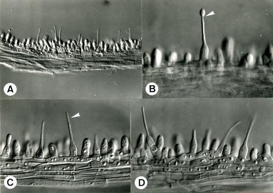 Hirsutella Anamorphic fungi gtgt Anamorphic fungi gtgt Anamorphic fungi