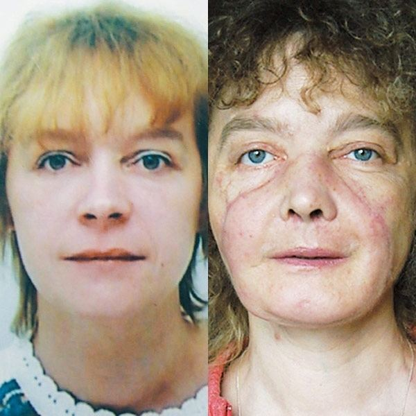 Isabelle Dinoire She39s perfect39 doctor says of face transplant patient