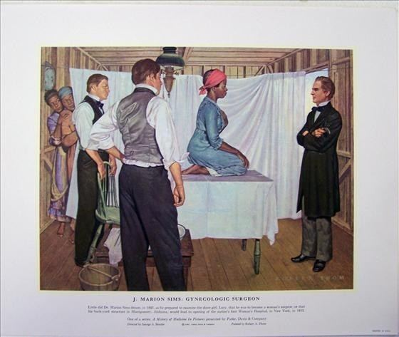 J. Marion Sims The SoCalled Father of Modern Gynecology Actually