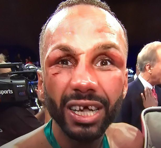 James DeGale i1mirrorcoukincomingarticle9625563eceALTERN