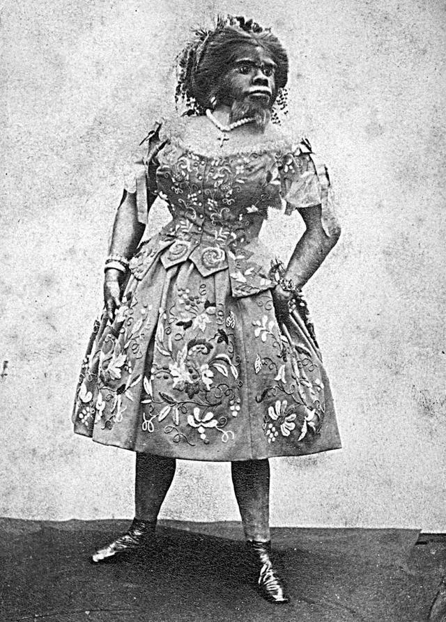 Julia Pastrana Beauty Is an Impediment Julia Pastrana and the ModernDay