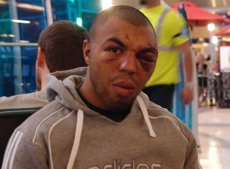 Karl Amoussou Karl Amoussou perds au Bellator 86 MMAFIGHTSPORT