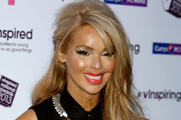 Katie Piper Alchetron The Free Social Encyclopedia