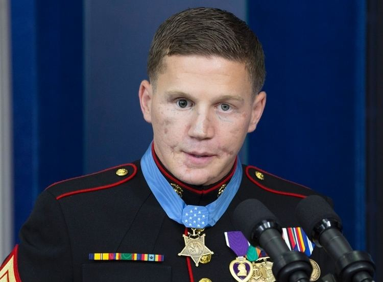 Apologise, but, Kyle carpenter before and after surgery topic simply