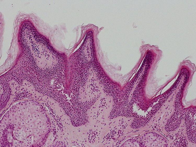 Linear verrucous epidermal nevus