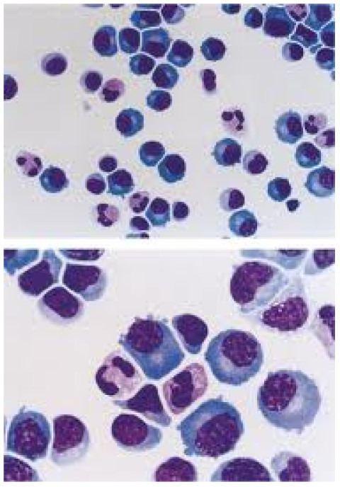 Lymphocytic pleocytosis