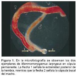 Mammomonogamus First case report of Mammomonogamus Syngamus laryngeus human