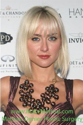 Matisse (singer) Pop Dance Singer Matisse Says No Plastic Surgery Makemehealcom