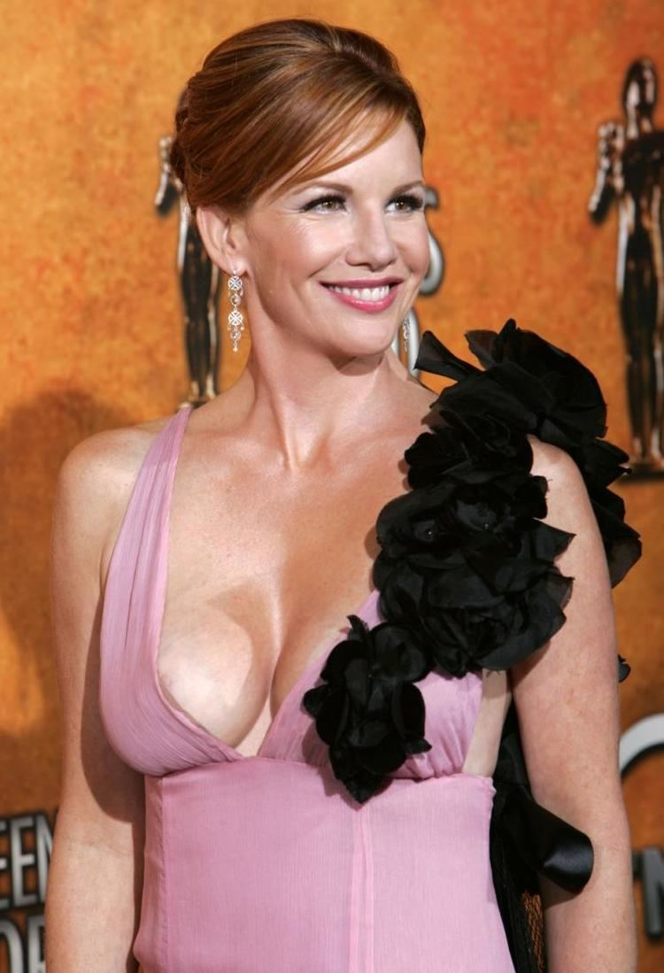 Melissa Gilbert Girl Talk Why I Had My Breast Implants Removed Melissa