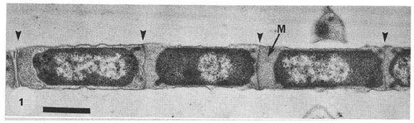 Methanosaeta Quorum Sensing in Methanosaeta harundinacea 6Ac MicrobeWiki