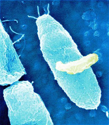 Micavibrio aeruginosavorus bacteria offer potential solution to drug resistance problem