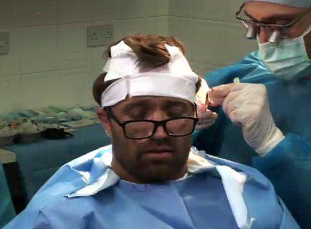 Michael Gray (footballer) MichaelGrayHairTransplantjpg