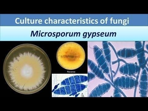 Microsporum gypseum.(Clear over view about Colony morphology). - YouTube
