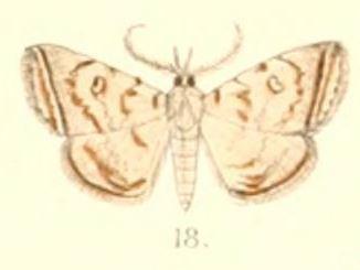 Mixomelia