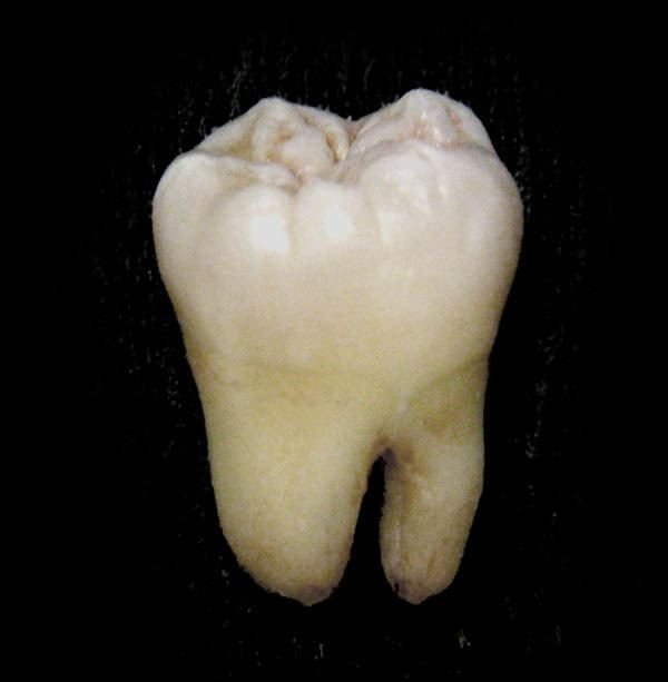 Molar (tooth)