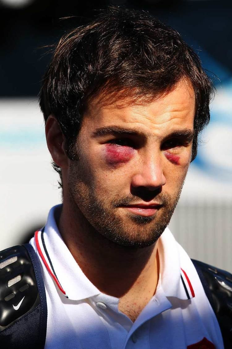 Morgan Parra France39s Morgan Parra sports two black eyes in the