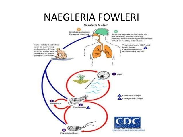 naegleriasis wikipedia