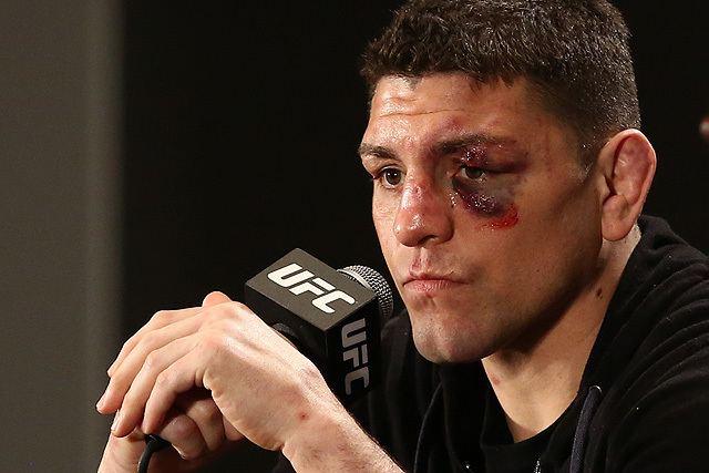 Nick Diaz UFC 183 Silva vs Diaz