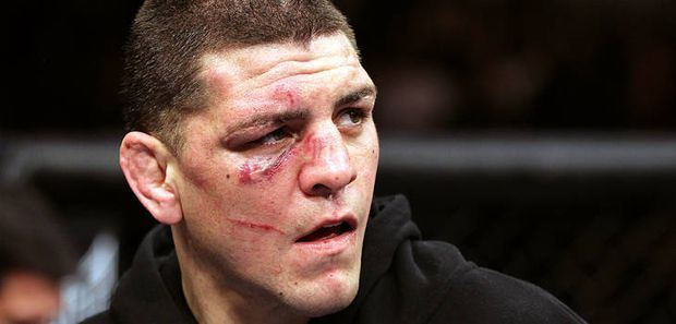 Nick Diaz UFC star Nick Diaz arrested on DUI charges for the second