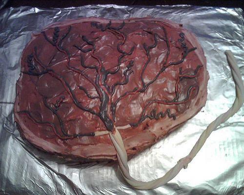 Placenta Cake Httpsc2staticflickrcom430612996074458a7a8