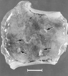 Porcine parvovirus httpsuploadwikimediaorgwikipediacommonsthu