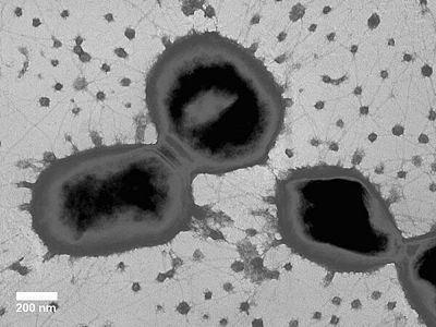Porphyromonas gingivalis encitizendiumorgimagesthumb88dPgingivalis