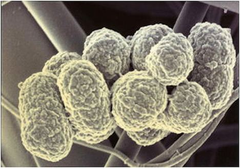 Porphyromonas gingivalis Gum Disease Bacteria May Be Risk Factor for Esophageal Cancer www
