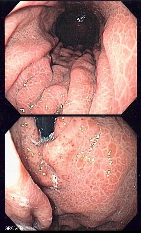 Portal hypertensive gastropathy
