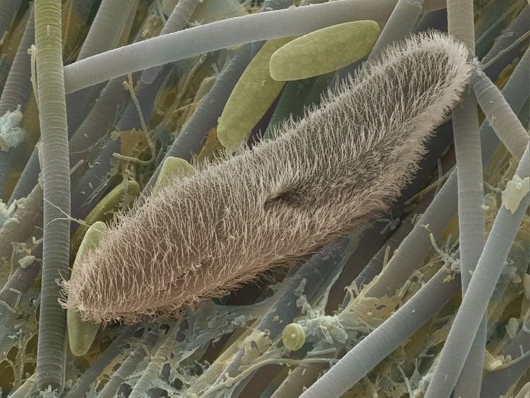 Protozoa About Microbiology Protozoa