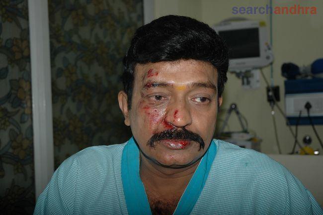 Rajasekhar (actor) Actor Rajasekhar Injured Photo Gallery Actor Rajasekhar