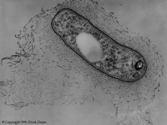 Rhizobium DLCME The Microbe Zoo Dirtland Root Cellar Rhizobium