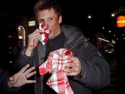 Robban Andersson Robinson Robban slogs blodig i natt Njesbladet