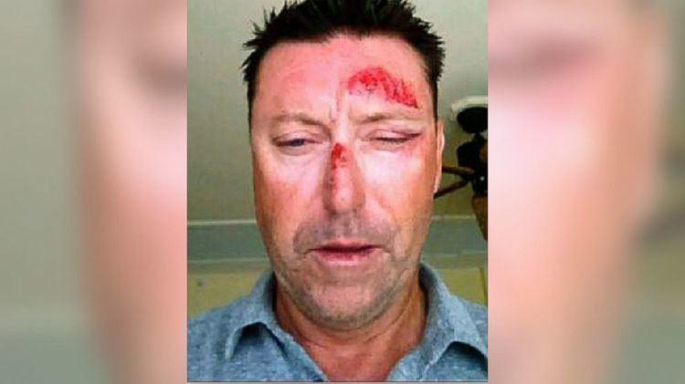 Robert Allenby PGA Golfer Robert Allenby Says He Was Beaten Robbed in