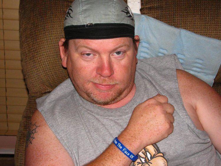 Scott Cannon Scott Cannon The Faces Of Ankylosing Spondylitis