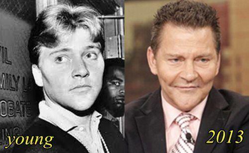 Scott Thorson Scott Thorson Plastic surgery Before and After